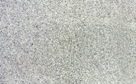 Black White Granite